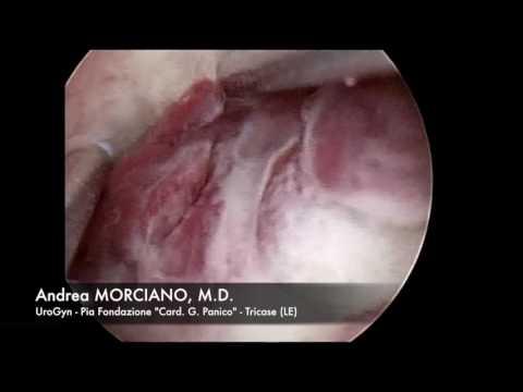 Polipectomia Resettoscopica | Hysteroscopic Polypectomy