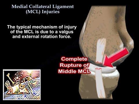 Tratamentul artrozei genunchiului cu metode moderne