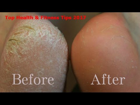 Video How to Get Rid of Dry or Dead Skin on Feet, Face, Lips, Hands Natural Tips
