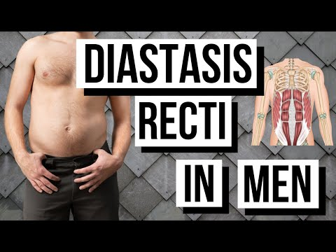 DIASTASIS RECTI IN MEN Over 35 (FIX YOUR BELLY BULGE!)