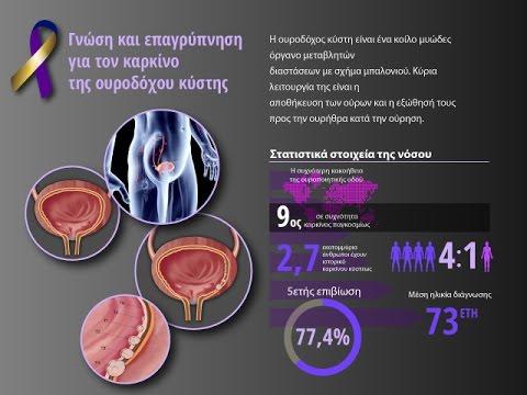 Λουτρά νέφτι στη θεραπεία της προστατίτιδας