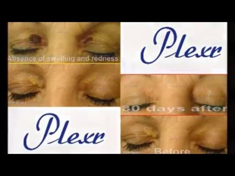 Soft Surgery at Epilight New Skin Clinic Liverpool