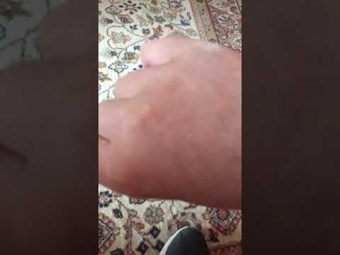 Kenőcsék térdízületek sérülése után