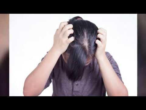Hogyan lehet gyógyítani a seborrheás pikkelysömör
