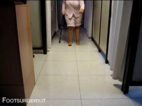 Recante larticolazione della spalla per MRI