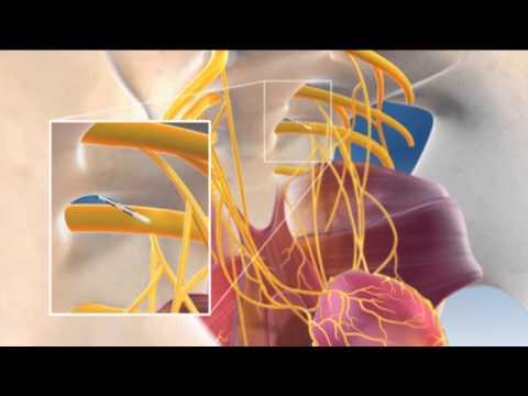 A prosztatitis etiológiája és patogeneziséje