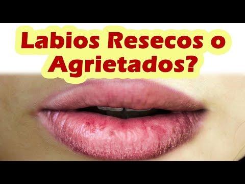 Remedios Caseros Para Labios Resecos o Agrietados COMO QUITAR LO RESECO DE LOS LABIOS