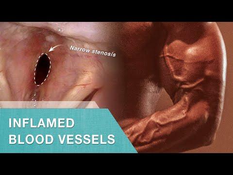 Video Wegener's Granulomatosis - Forme Fruste (incomplete expression)