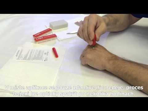 Prostaty bílé krvinky v moči
