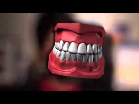 Laser Treatment For Gum Disease in Macomb County, MI - Dr. Joseph Nemeth