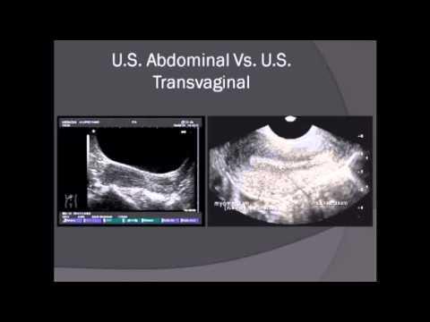Ape Podmore uso nel trattamento della prostatite