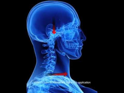 Rondine non fa male, ma il dolore al collo