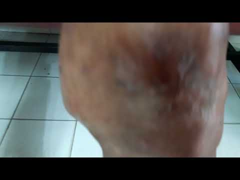Ronkoleykin e dermatite atopic