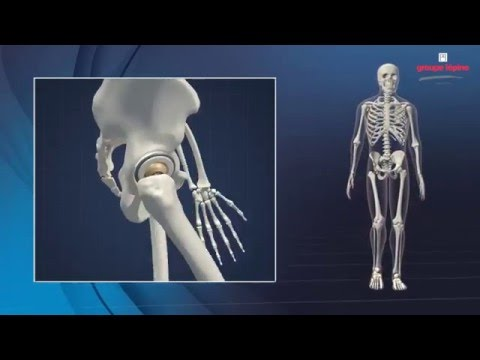 Wie Brust-Osteochondrose lernen