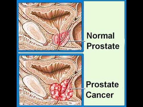 Masaža rak prostate