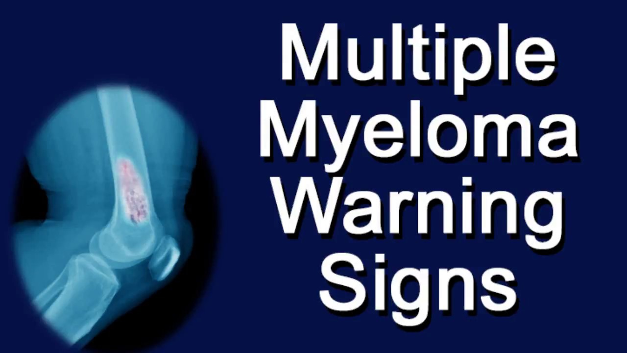 Multiple myeloma stage 3 life expectancy