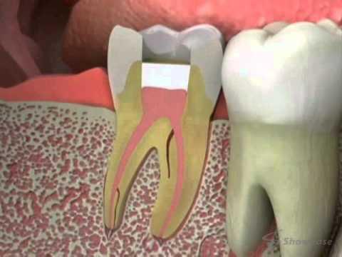 Emergency Dentist Sacramento Tooth Pain Relief