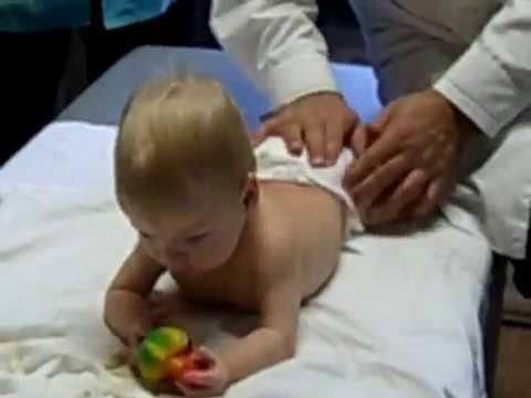Детский массаж. Дисплазия тазобедренных суставов