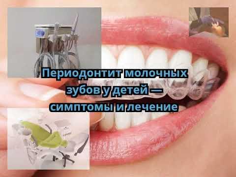 Периодонтит молочных зубов у детей — симптомы и лечение