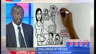 Weekend at One: Challenges in Fistula