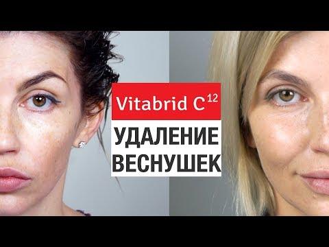 Как осветлить лицо от пигментных пятен видео