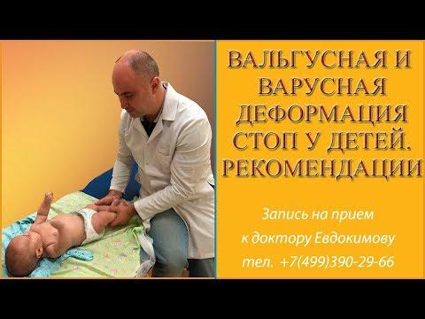 Вальгусная и варусная деформация стоп у детей. Рекомендации