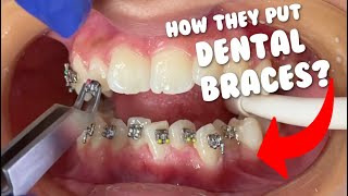 How They Put Braces - Dental Braces Tooth Time Family Dentistry New Braunfels