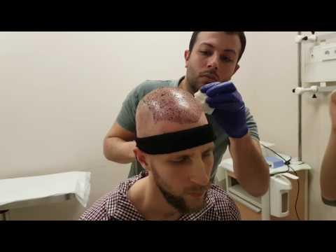 Haartransplantation Türkei Teil 4 - Nach der Operation, erste Nacht, Medikamente