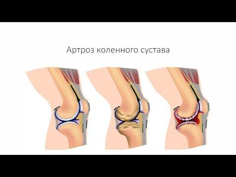 Артроз коленного сустава - симптомы, причины, диагностика
