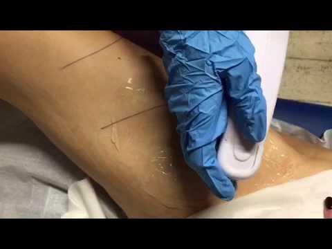 Colpi efficaci di prostatite cronica