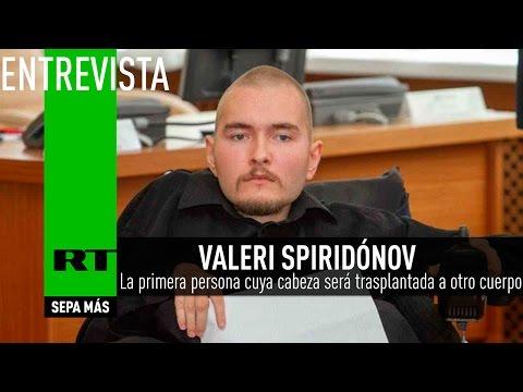 Valeri Spiridónov, primera persona cuya cabeza será trasplantada a otro cuerpo - Entrevista