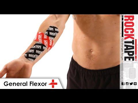 General Flexor
