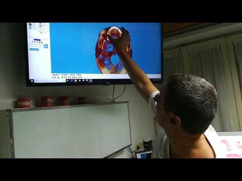 Analgesico per il mal di schiena