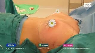 Gambar cover Silikon Protez ile Göğüs Büyütme
