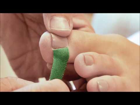 Die Entzündung um den Nagel auf der Hand die Behandlung