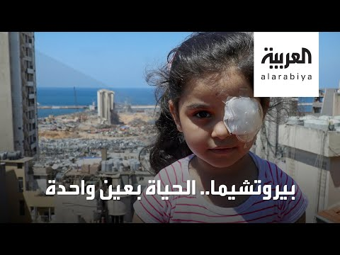 العرب اليوم - شاهد: قصة مؤلمة لطفلة لبنانية فقدت إحدى عينيها بانفجار بيروت
