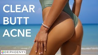 How to Get Rid of Butt Acne, Butt Pimples & Butt Acne Scars