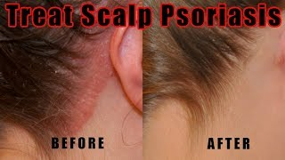 How to Treat Scalp Psoriasis – 5 Natural Ways for Treating Psoriasis of the Scalp at Home