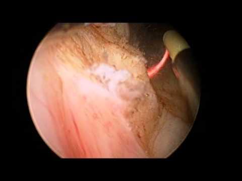 Infermiera della prostata dito