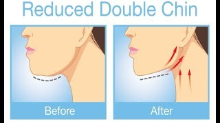 How to Lose your Double Chin Overnight – Fast Double Chin Treatment