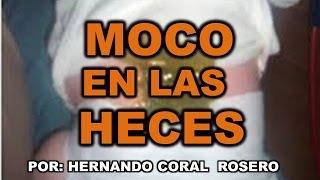 MOCO EN LA HECES