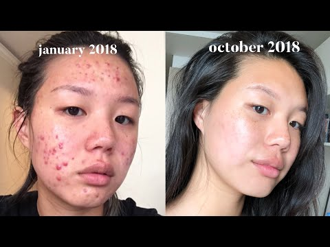 Acne Skincare Routine FINALLY.