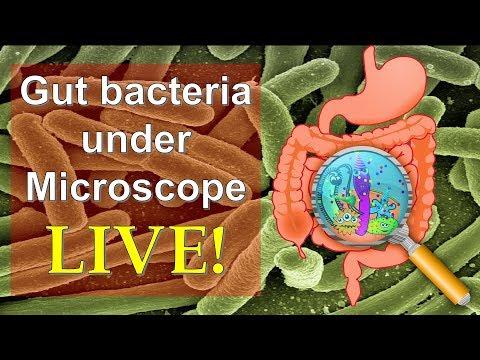 Bevált receptek a paraziták ellen