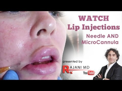 Microcannula and Needling Lip  Video