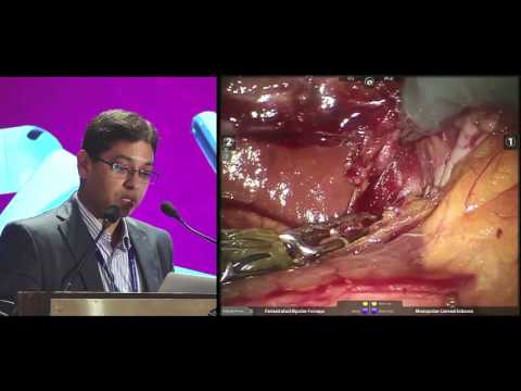 Robotic ALPPS Stage 1 and Simultaneous Robotic Low Anterior Resection