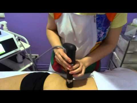 La artrosis de las articulaciones de los dedos del pie.