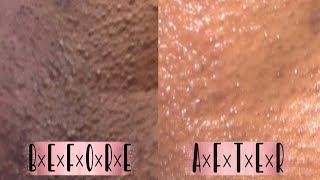 How To Lighten Your Private Areas At Home| No More Ingrown Hairs & Razor Bumps
