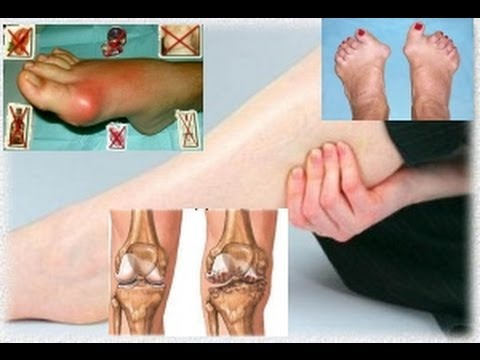 Сильная боль в голеностопном суставе без травмы