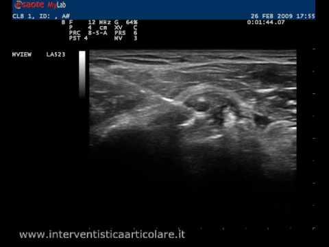 Mal di schiena durante la notte provoca trattamento