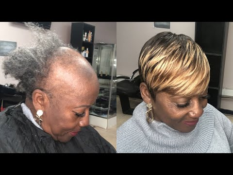SEWING WEAVE ON SEVERE ALOPECIA (TIPS & TRICKS) | PIXIE SHORT CUT